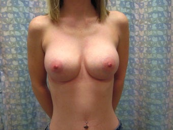 Breast Augmentation Saline above the muscle after 490950
