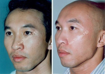 Non-Surgical Face Lift- Exoderm  before 242998