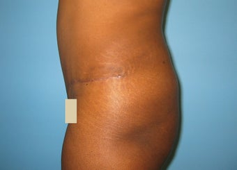 Tummy Tuck after 149403