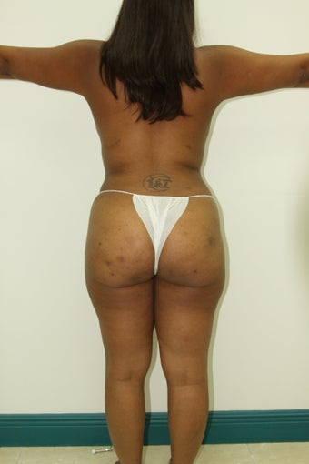 Liposuction and Fat Injection after 526171
