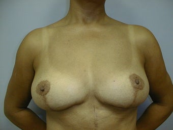Breast Implant Removal and Lift after 589932