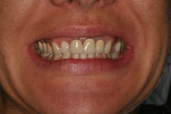 Dental crowns, dental implants, dental veneers before 569204