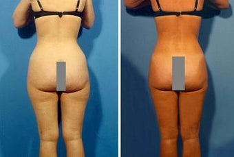 Liposuction before 636229