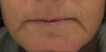 Fraxel re:pair for upper lip lines after 1 treatment before 121891