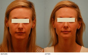Injectable Fillers (Restylane/Perlane) before 136779