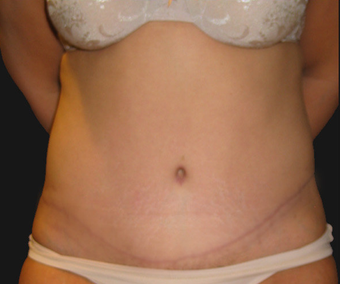 Abdominoplasty after 458935