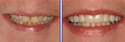 Veneers before 391582