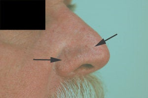 Vein removal on the nose with laser treatments before 106549