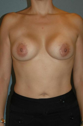 Breast implant removal and re-augmentation