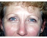 Eye Lid Lift Surgery (Blepharoplasty) after 155478