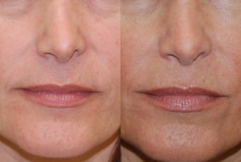 Non-Surgical Rhinoplasty with Silikon-1000. Nostril lowering after previous rhinoplasty surgery. before 354518