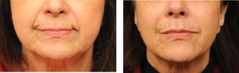 Radiesse to Nasolabial Folds before 494433