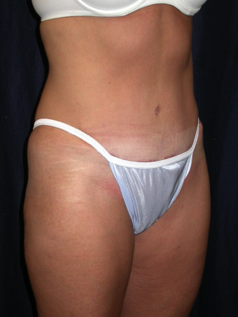 Tummy Liposuction after 229697