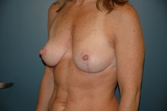 Breast lift after 146374
