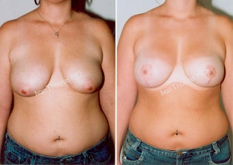 Mastopexy-Breast Lift before 243730