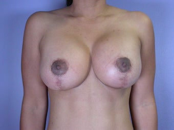 Breast lift with implants after 321711