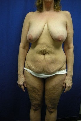 Full Abdominoplasty and Breast Lift with Implants before 381787