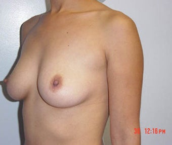Breast augmentation before 143446