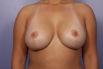 Breast Lift  after 302533