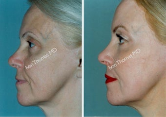 Non-Surgical Face Lift- Exoderm  before 242979