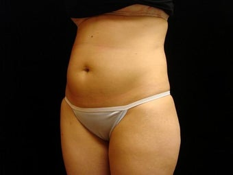 Cool Sculpting on Mid Abdomen 523842