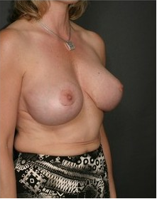 Breast Lift 99893