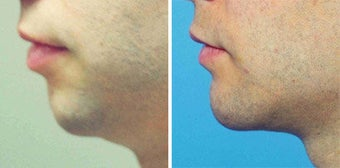 Chin Implant before 642998