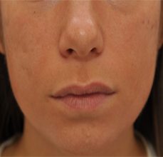 Acne Scarring before 426033