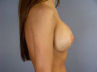 Breast Revision after 307222