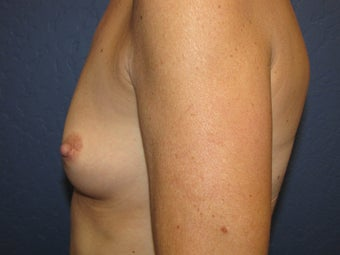 Breast Augmentation 465611
