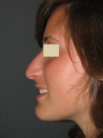 Rhinoplasty  before 130373