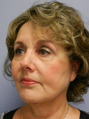 Lower Face with Neck Lift 598878
