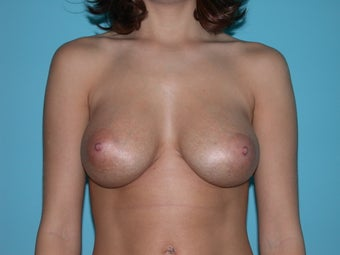 Breast implants after 265770