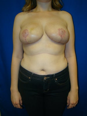Breast Reduction Surgery after 153380