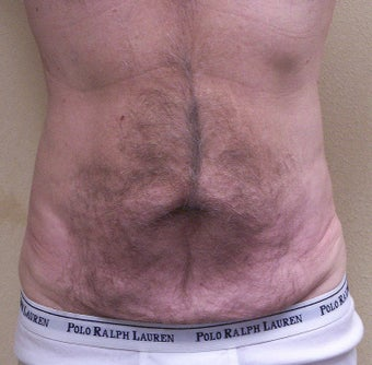 VASER Shape to Abdomen before 433039