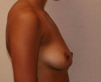Augmentation Mammaplasty (Breast Implants) before 226511