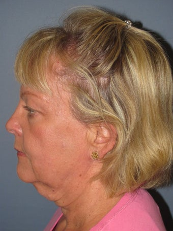 Neck Lift, Platysmaplasty 634748