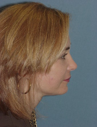 Facelift and Endoscopic Brow Lift after 227694