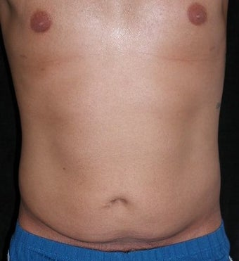 Male tummy Tuck, Flank Liposuction before 578199