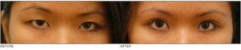 "Asian Blepharoplasty (""Double Eyelid"" Procedure) before 136816"