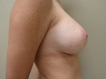 Saline Breast Augmentation Moderate Plus Profile 325 cc 339386