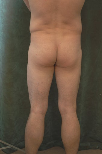 Men's Buttocks Augmentation 518162