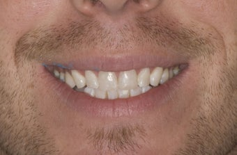 Composite Bonding and Porcelain Crowns after 374723
