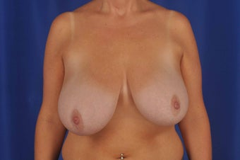 Asymmetrical Breast Reduction