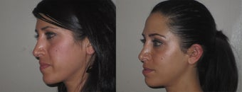 Facial Rejuvenation, non-surgical after 450123