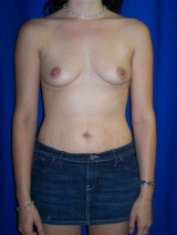Breast Augmentation, Mommy Makeover, Tummy Tuck (Abdominoplasty) before 391987