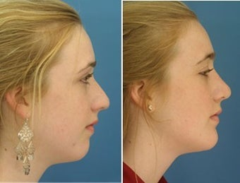 Rhinoplasty with Chin Implant young girl before 6773