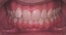 Invisalign before 353426