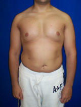 Pec Implants after 130082