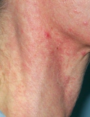 Vbeam laser treatment before 374531